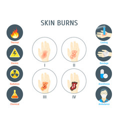 human skin burns infographic card poster vector image