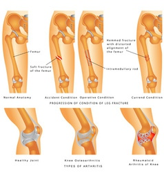 Fractures of femur vector
