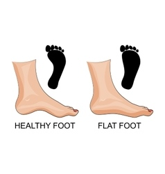 Feet healthy and flat feet footprint vector