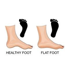 Feet healthy and flat feet footprint vector