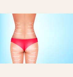 Lines showing surgery on female body vector image vector image