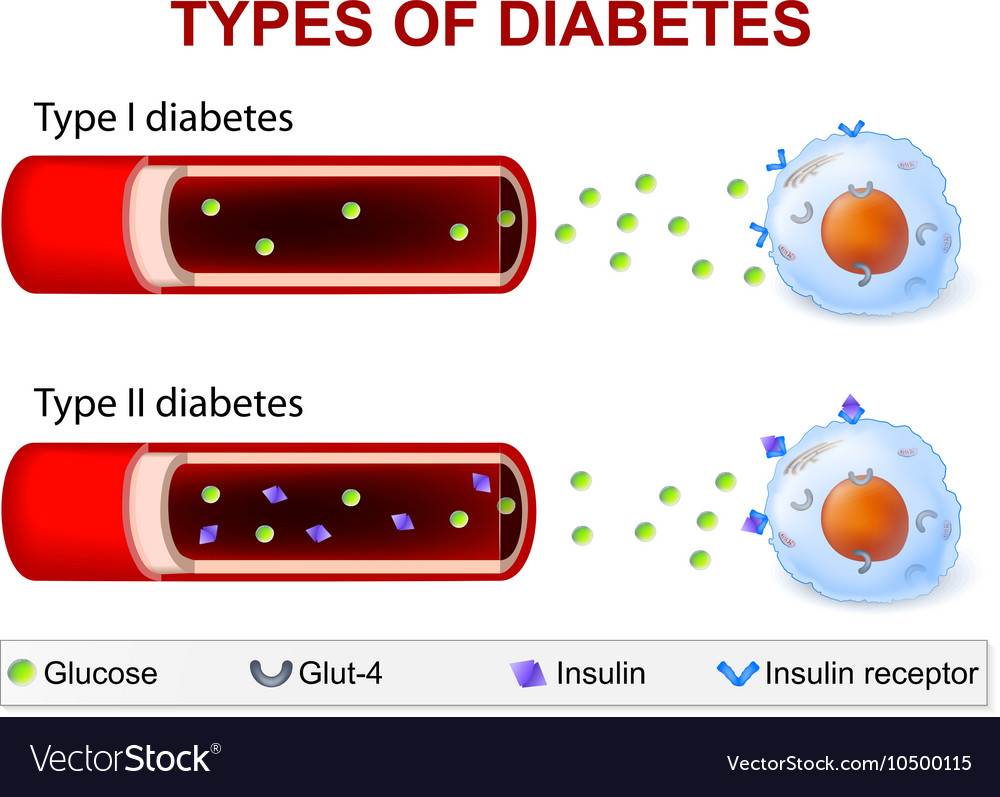 Diabetes type 1 and type 2 vector