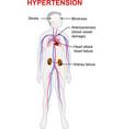 hypertension vector image vector image