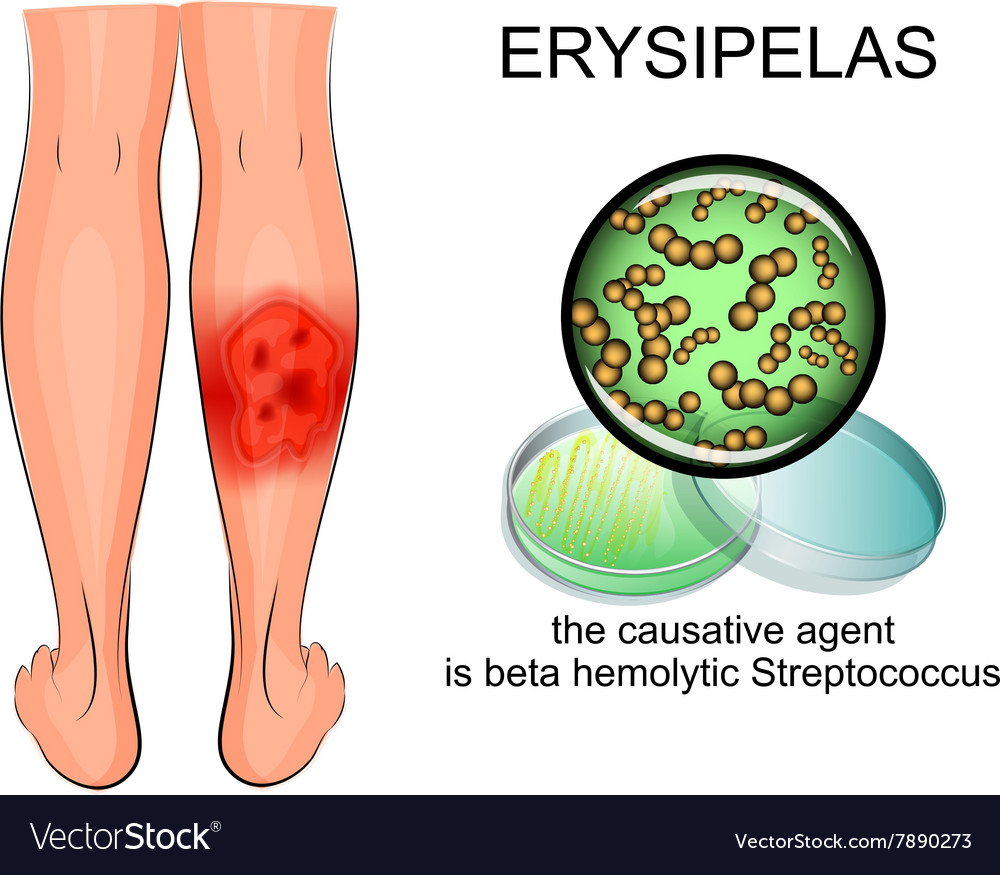Erysipelas of the lower leg vector