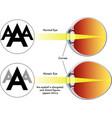 myopia vector image