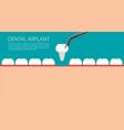 dental implant flat vector image