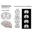 dementia alzheimer disease vector image