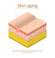 skin aging card poster isometric view vector image
