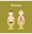 eczema sick with human body full vector image
