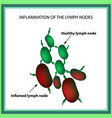 inflammation of the lymph nodes infographics on vector image
