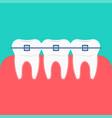 teeth braces icon vector image
