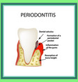 periodontitis dental disease inflammation of the vector image
