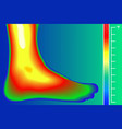human leg infrared thermograph with temperature vector image