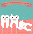 Wisdom Teeth Horizontal Impaction vector image