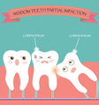 Wisdom Teeth Partial Eruption Impaction vector image
