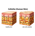 Cellulite vector image vector image