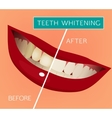 Teeth Whitening vector image