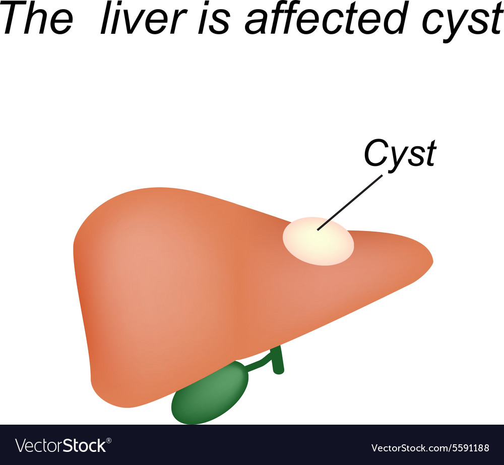 A cyst in the liver the liver is affected cyst vector