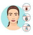 woman facial treatments skin problems and face vector image