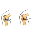 knee joint of healthy and damaged vector image