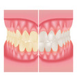 teeth whitening dental care before and after vector image