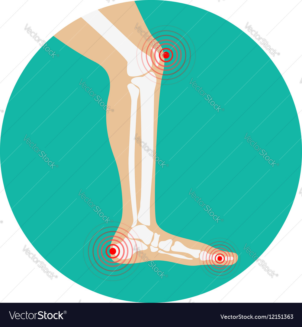 Human leg pain zones design elements for vector