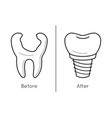 icons of tooth dental implant vector image