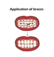 The use of braces Crooked teeth Orthodontics vector image
