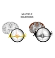 multiple sclerosis of the brain vector image
