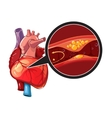 Myocardial infarction vector image