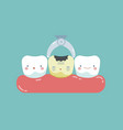 to take decayed tooth out teeth and tooth concept vector image