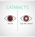 cataracts icon vector image