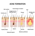 Formation of acne vector