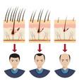 hair loss vector image vector image