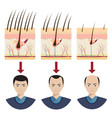 hair loss vector image