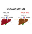 healthy and fatty liver vector image