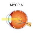 Myopia Myopia is being short sighted vector image