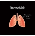 Bronchitis The anatomical structure of the human vector image