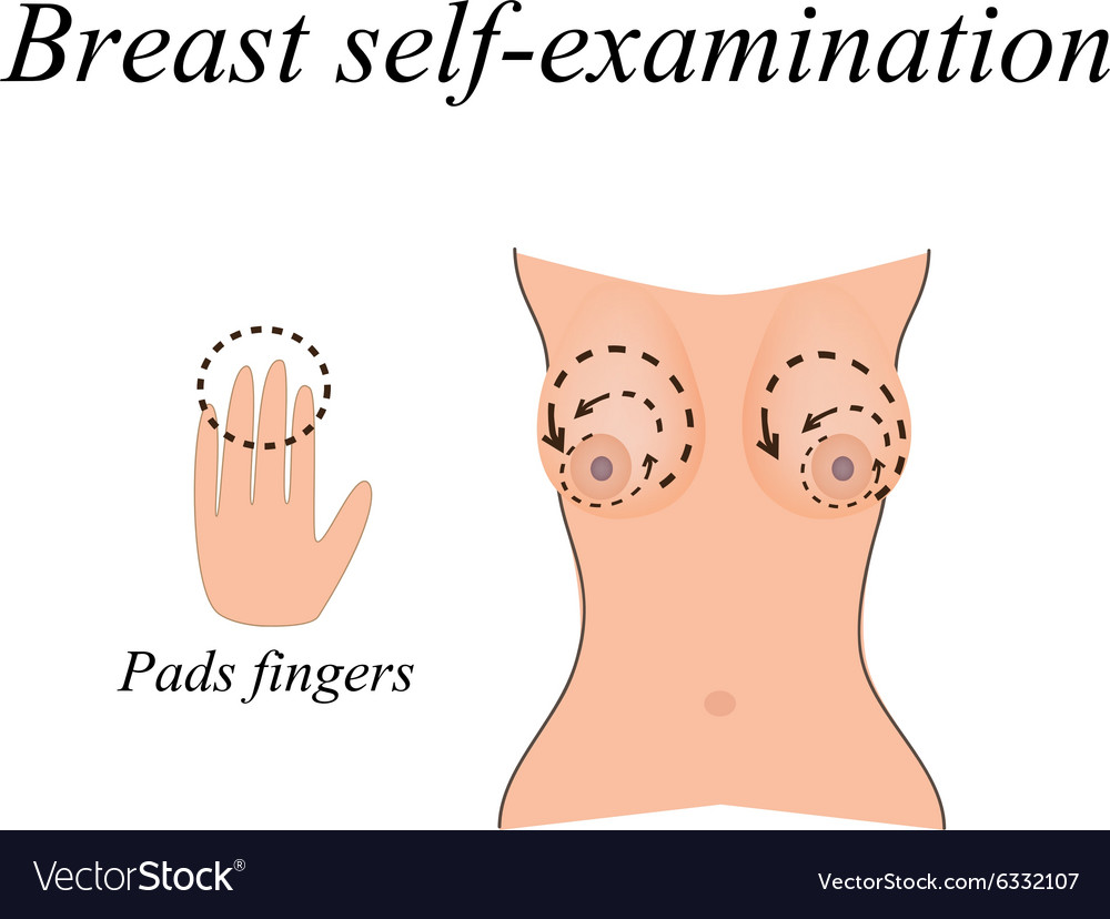 Breast selfexamination the fight against breast vector