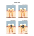 Caries vector image