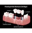a fixed partial denture vector image