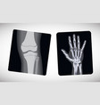 x-ray of the hand and foot vector image