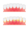 Teeth and gums vector image