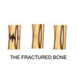 bone fracture trauma vector image