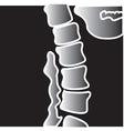Xray bones vector image vector image