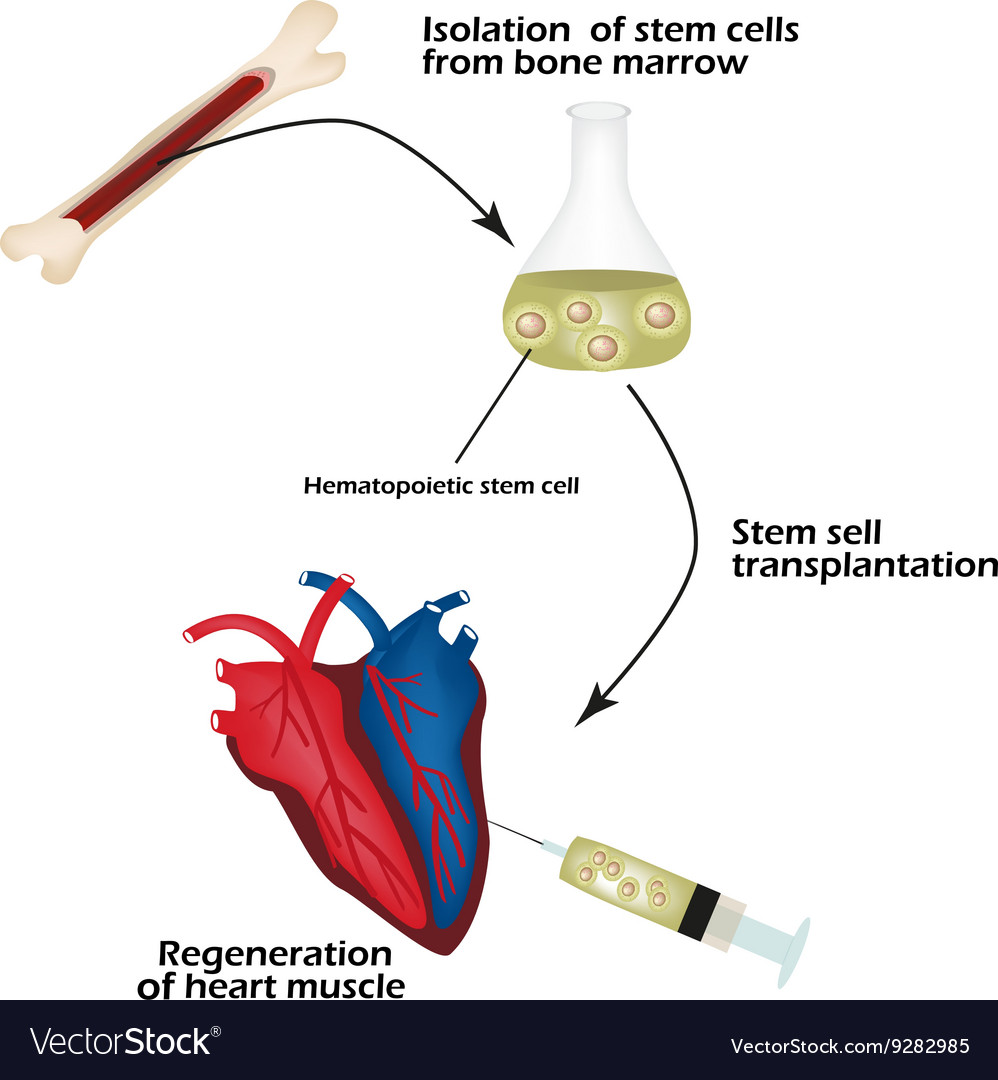 Stem cells from bone marrow is used to regenerate vector