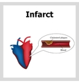 Heart attack Atherosclerosis Thrombus Artery vector image