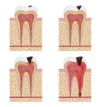 Development of dental caries vector image vector image