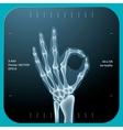 X-ray of both human hand - OK symbol vector image