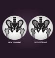 osteoporosis logo icon design vector image
